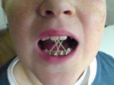 tandställning gummisnoddar färger